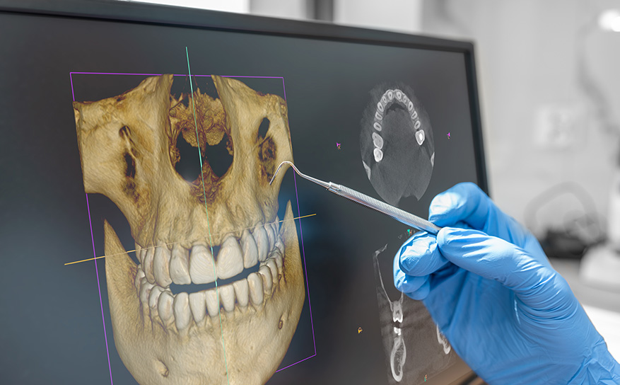 Chesapeake Oral Surgeon Explains How 3D X-Rays Benefit Patients