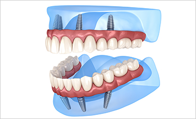 Many Missing Teeth Can Be Replaced with Relatively Few Dental Implants