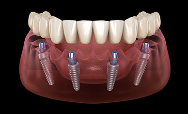 Dental Implants Provide Secure Foundation for Dentures and Bridges