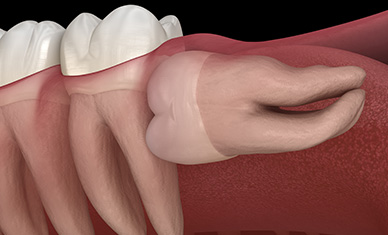 Wisdom Teeth Problems Explained by Lutherville Oral Surgeon
